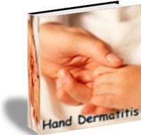 Hand Dermatitis screenshot medium