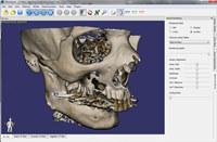 3DimViewer screenshot medium